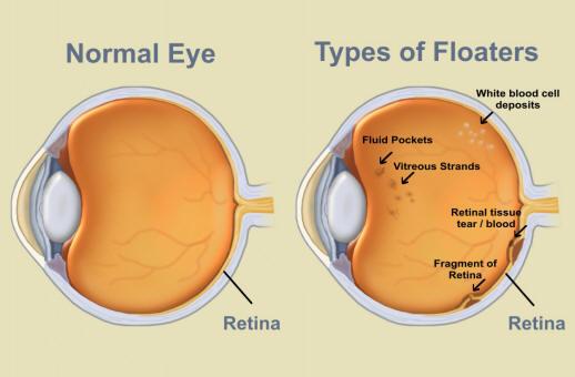 how to become optometrist uwaterloo