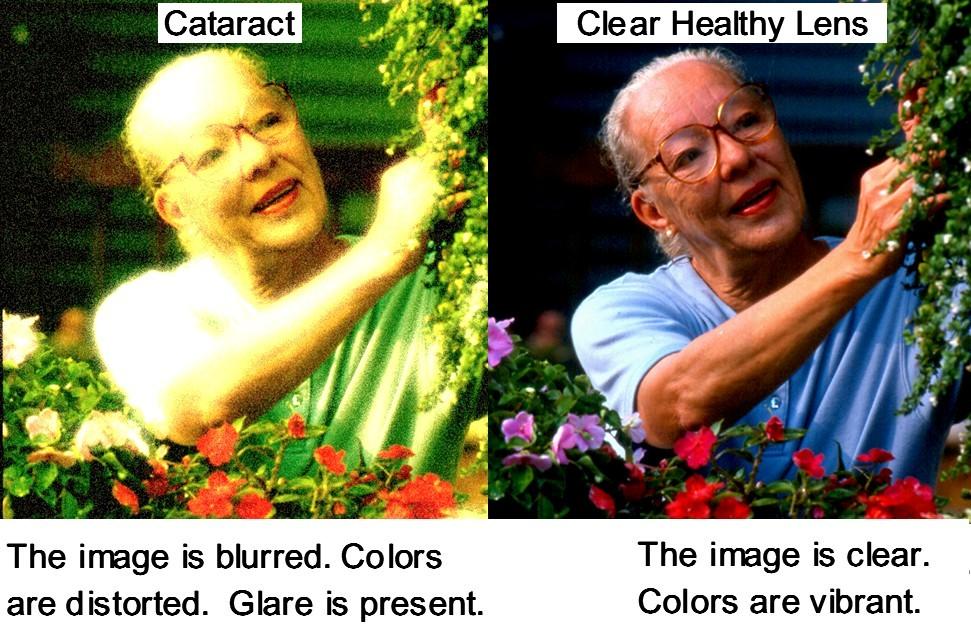 Cataract Cant Run Cant Hide Ho Optometrist